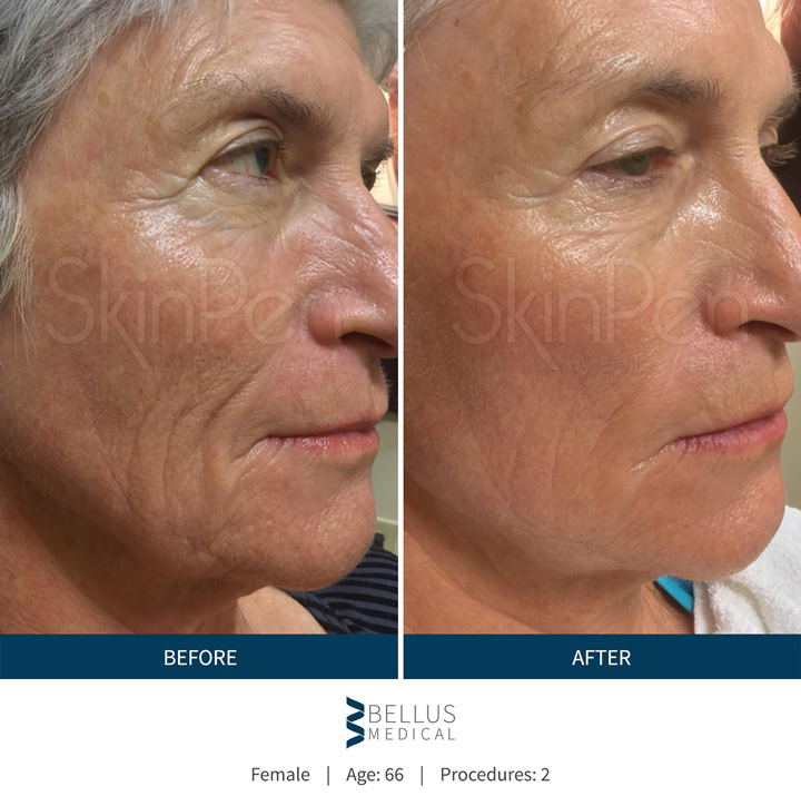 Microneedling (Collagen Induction Therapy) with SkinPen
