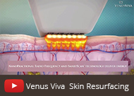 venus viva skin resurfacing video thumbnail