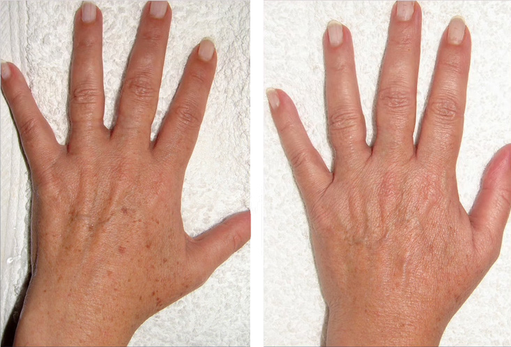 ipl-hand-before-and-after