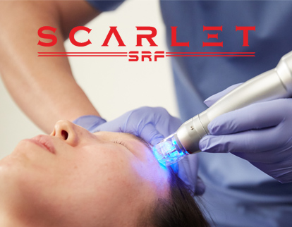 The Scarlet RF System