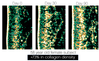 skinade-cortex-collagen-scans