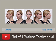 bellafill-testimonial-video-thumb