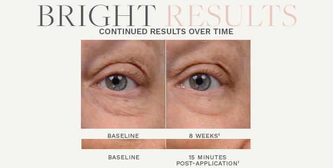 instant-bright-before-and-after-after-eight-weeks