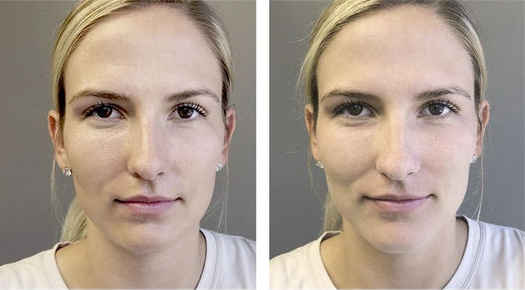 Sheer Matte SPF 30 Sunscreen Brush before and after